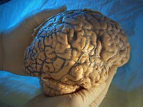O cérebro humano é altamente complexo.