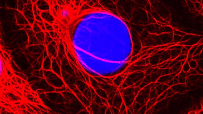 A droga deve Aromsin câncer de mama: prevenção (na foto é uma célula de câncer de mama).